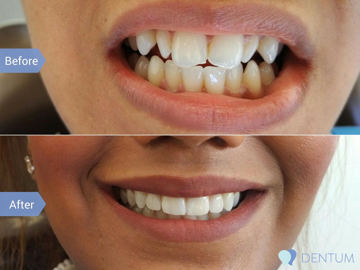 dentumblog--4-